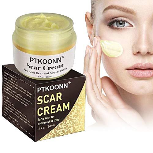 Crème pour cicatrices,Crème de réparation de la peau,Traitement des cicatrices,Crème anti-acné brûlante,Visage et corps,Idéal pour tous les types de cicatrices nouvelles et anciennes