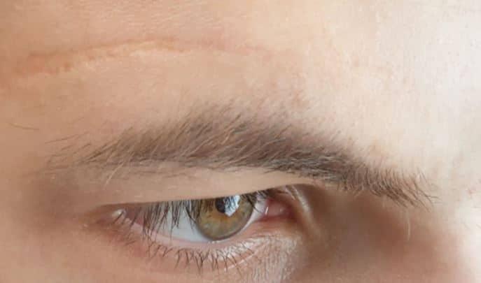 cicatrice visible visage