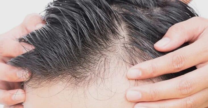 greffe de cheveux hongrie